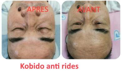 Kobido anti rides