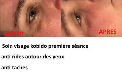 Kobido anti rides yeux