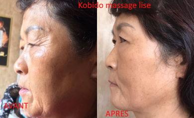 Kobido soin visage anti-âge